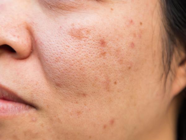 microneedlign per cicatrici acne centro estetico SSunBody Roma quartiere trieste