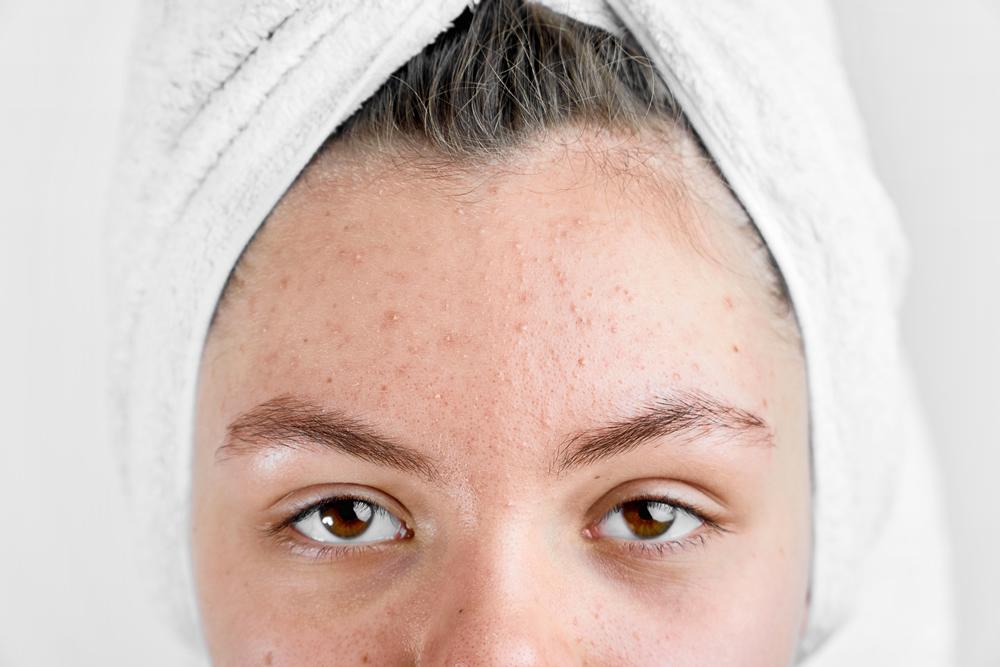 trattamento viso anti acne roma sunbody estetica & solarium